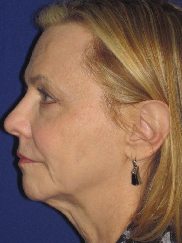 Facelift/Mini-Facelift Gallery - Patient 4890380 - Image 5