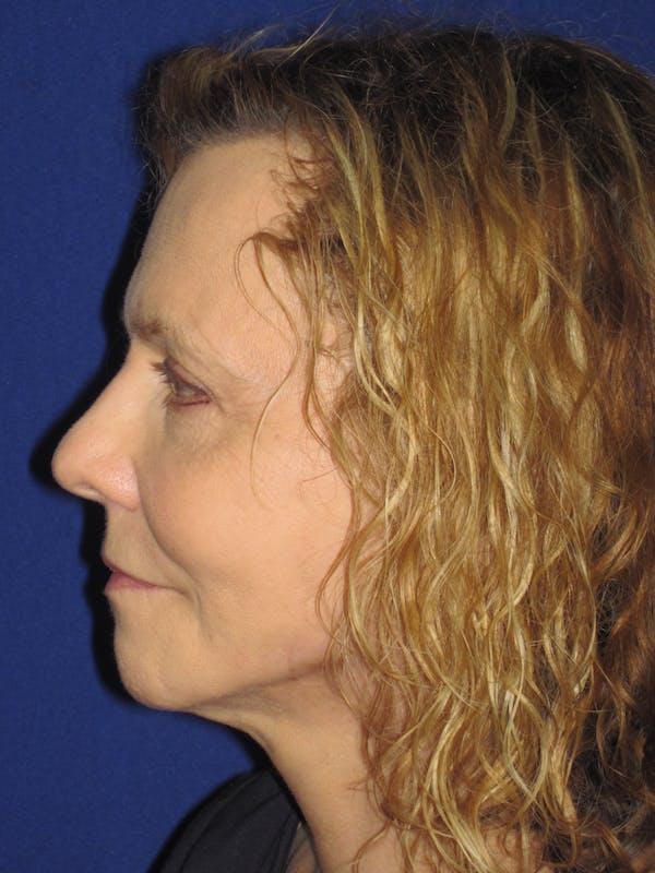 Facelift/Mini-Facelift Gallery - Patient 4890380 - Image 6