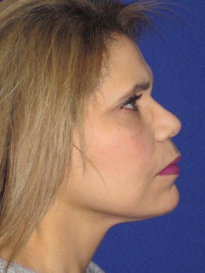 Facelift/Mini-Facelift Gallery - Patient 4890390 - Image 6