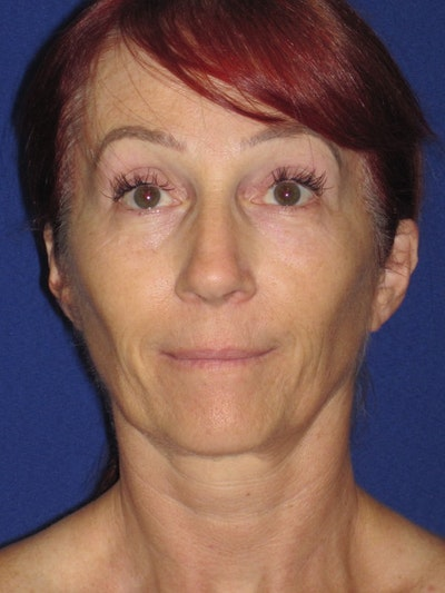 Facelift/Mini-Facelift Gallery - Patient 4890399 - Image 1