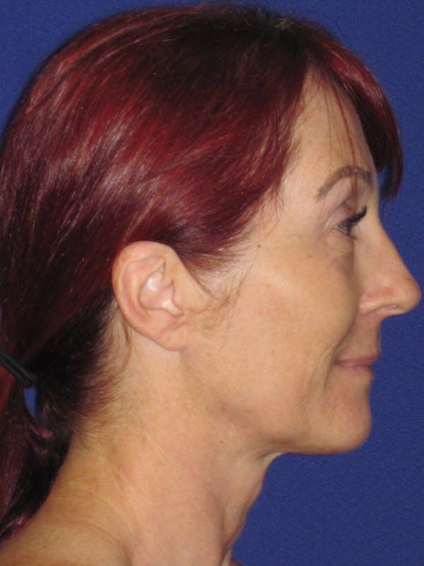 Facelift/Mini-Facelift Gallery - Patient 4890399 - Image 3
