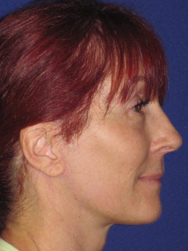 Facelift/Mini-Facelift Gallery - Patient 4890399 - Image 4