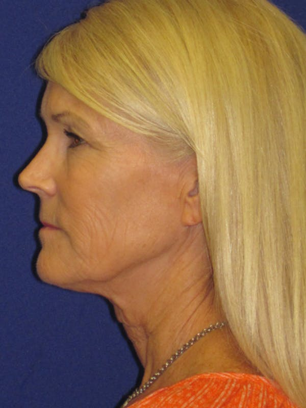 Facelift/Mini-Facelift Gallery - Patient 4890406 - Image 5
