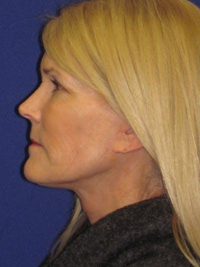 Facelift/Mini-Facelift Gallery - Patient 4890406 - Image 6