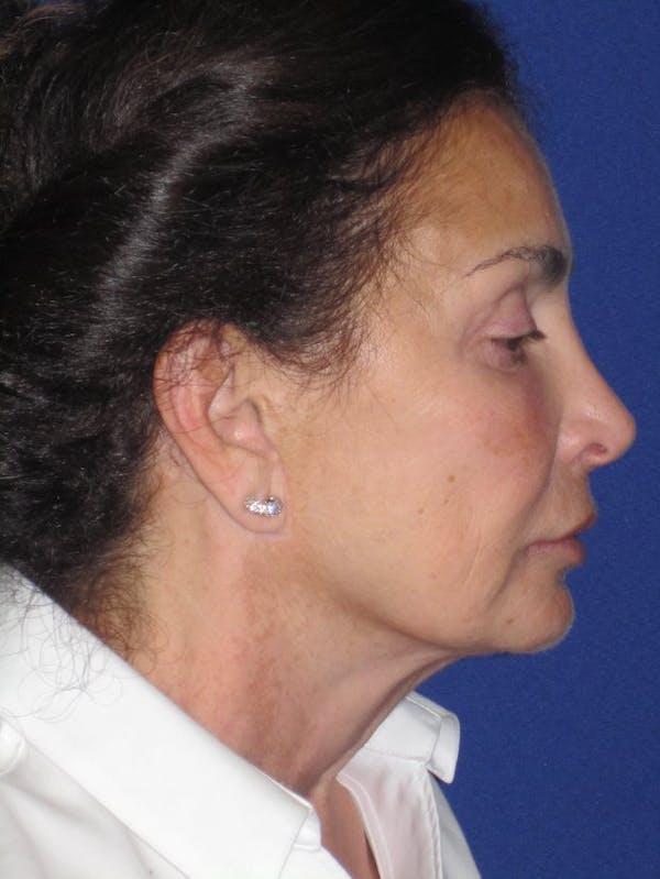 Facelift/Mini-Facelift Gallery - Patient 4890410 - Image 3