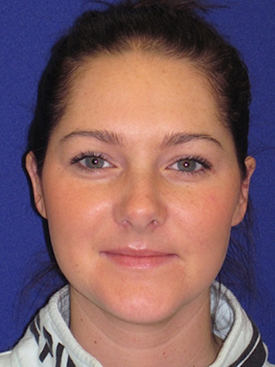 """Otoplasty """"Ear Pinning"""" Gallery - Patient 4890411 - Image 2"""