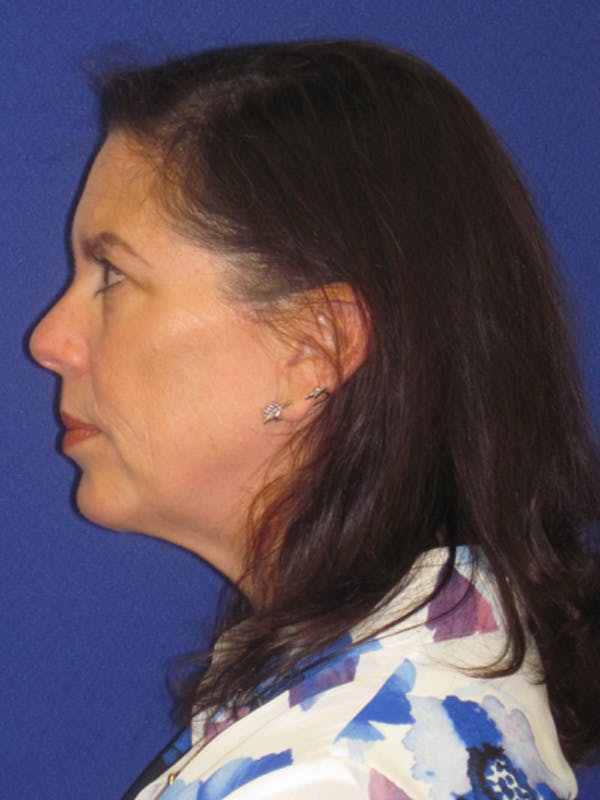 Facelift/Mini-Facelift Gallery - Patient 4890419 - Image 5
