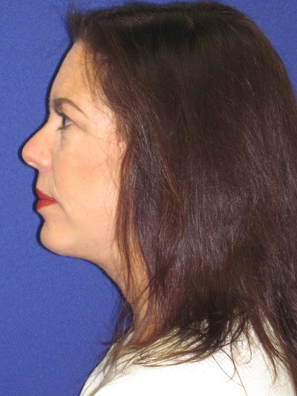 Facelift/Mini-Facelift Gallery - Patient 4890419 - Image 6