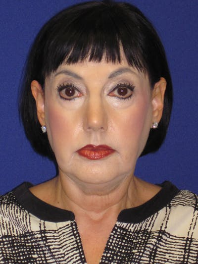 Facelift/Mini-Facelift Gallery - Patient 4890427 - Image 1