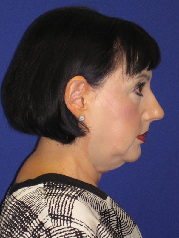 Facelift/Mini-Facelift Gallery - Patient 4890427 - Image 5