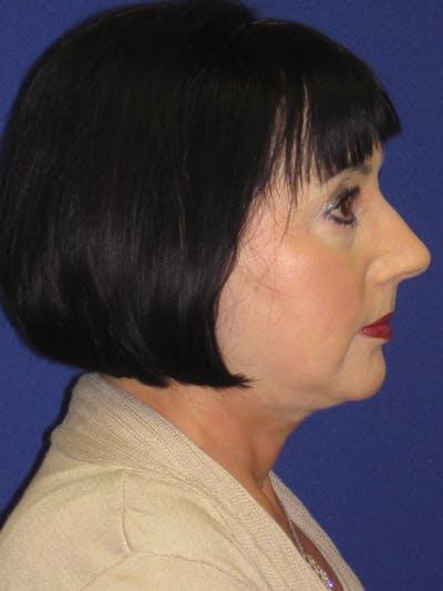 Facelift/Mini-Facelift Gallery - Patient 4890427 - Image 6