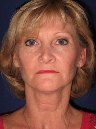Facelift/Mini-Facelift Gallery - Patient 4890429 - Image 1