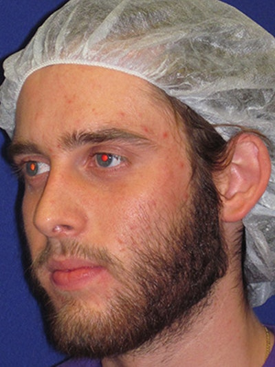 "Otoplasty ""Ear Pinning"" Gallery - Patient 4890432 - Image 1"