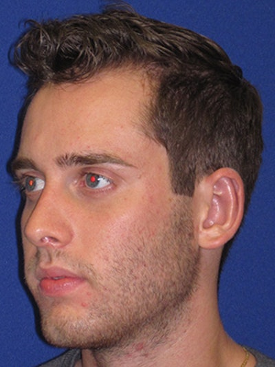 """Otoplasty """"Ear Pinning"""" Gallery - Patient 4890432 - Image 2"""