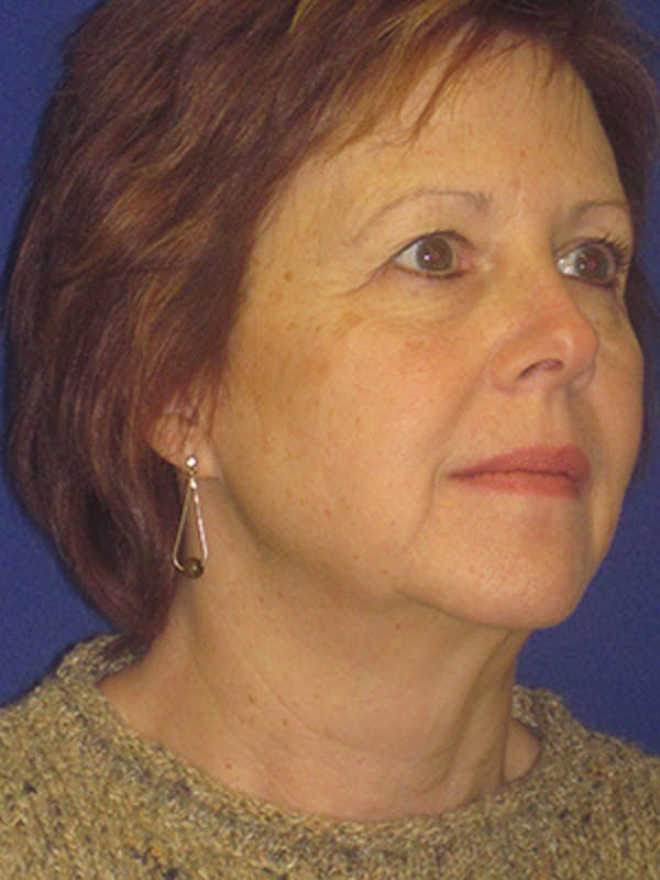 Facelift/Mini-Facelift Gallery - Patient 4890434 - Image 1