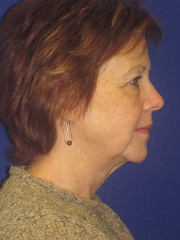 Facelift/Mini-Facelift Gallery - Patient 4890434 - Image 3