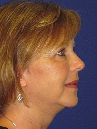 Facelift/Mini-Facelift Gallery - Patient 4890434 - Image 4
