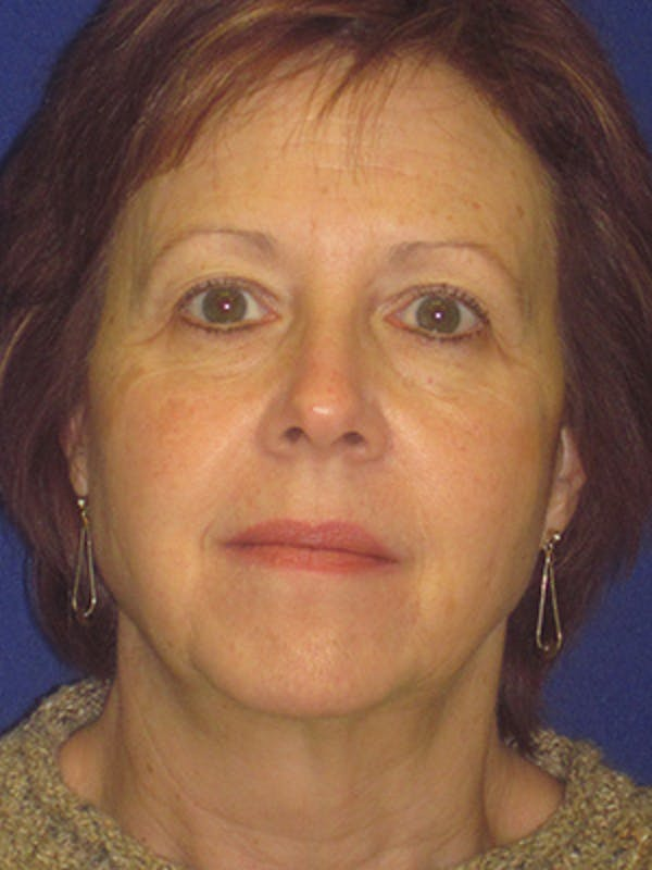 Facelift/Mini-Facelift Gallery - Patient 4890434 - Image 5