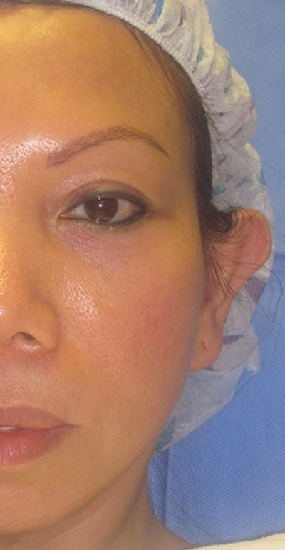 "Otoplasty ""Ear Pinning"" Gallery - Patient 4890433 - Image 1"