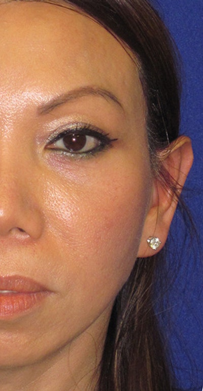 "Otoplasty ""Ear Pinning"" Gallery - Patient 4890433 - Image 2"