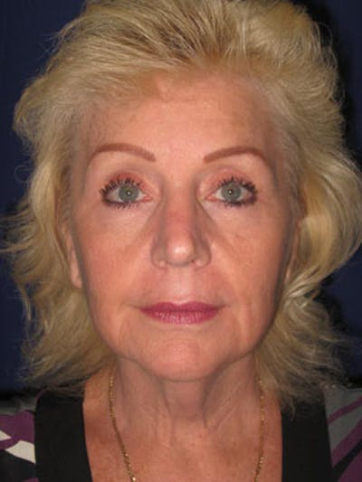 Facelift/Mini-Facelift Gallery - Patient 4890437 - Image 1