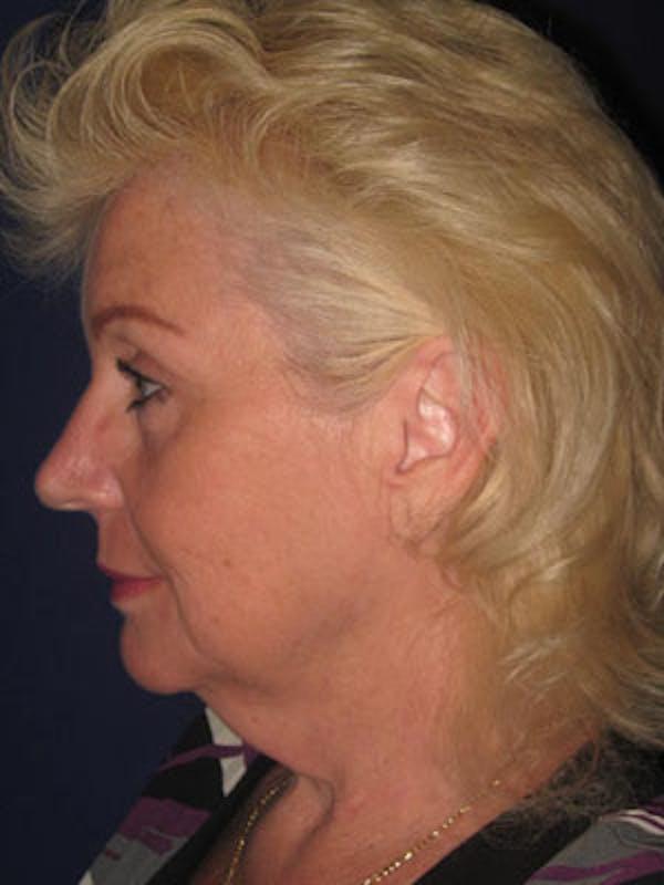 Facelift/Mini-Facelift Gallery - Patient 4890437 - Image 5