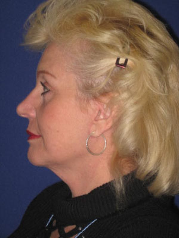 Facelift/Mini-Facelift Gallery - Patient 4890437 - Image 6