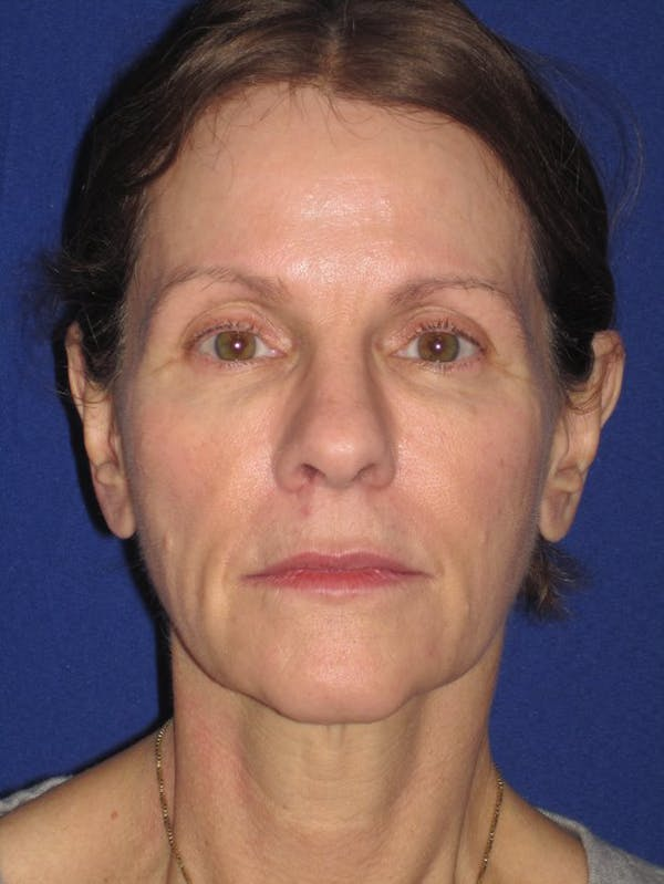 Facelift/Mini-Facelift Gallery - Patient 4890441 - Image 1