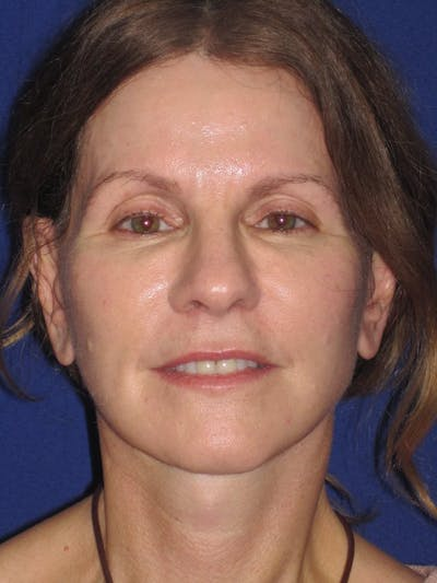 Facelift/Mini-Facelift Gallery - Patient 4890441 - Image 2