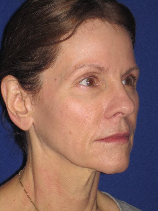 Facelift/Mini-Facelift Gallery - Patient 4890441 - Image 3