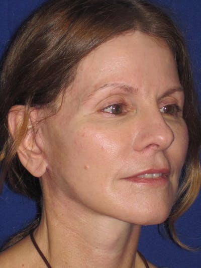 Facelift/Mini-Facelift Gallery - Patient 4890441 - Image 4