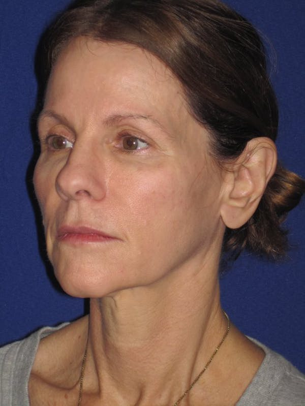 Facelift/Mini-Facelift Gallery - Patient 4890441 - Image 5