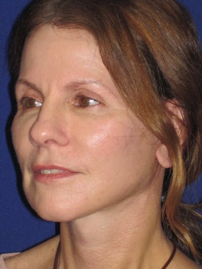 Facelift/Mini-Facelift Gallery - Patient 4890441 - Image 6