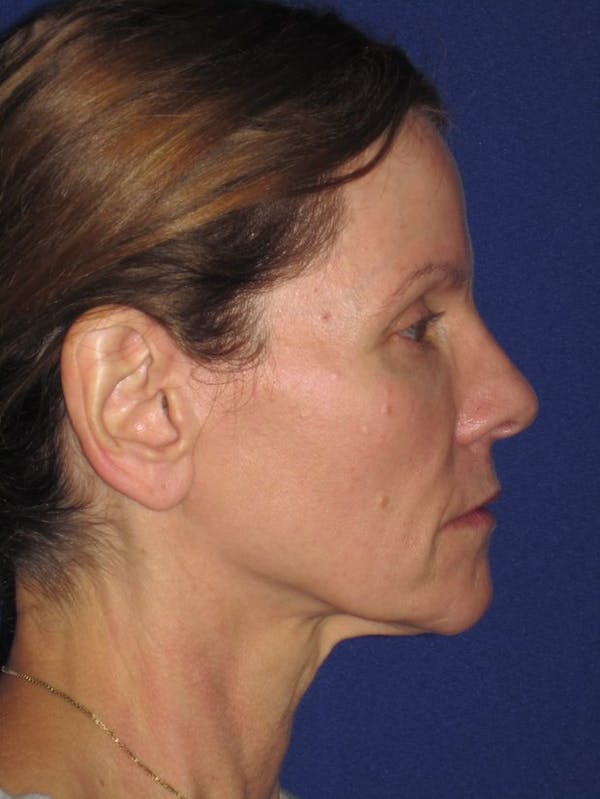 Facelift/Mini-Facelift Gallery - Patient 4890441 - Image 7