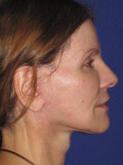 Facelift/Mini-Facelift Gallery - Patient 4890441 - Image 8