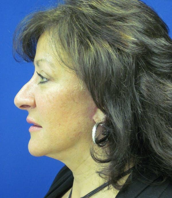 Facelift/Mini-Facelift Gallery - Patient 4890450 - Image 4