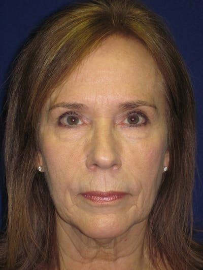 Facelift/Mini-Facelift Gallery - Patient 4890484 - Image 1