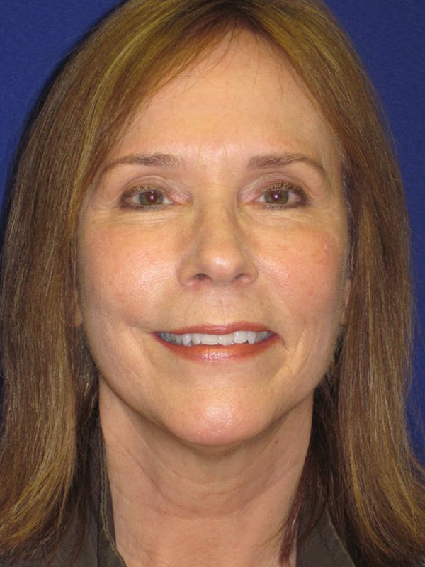 Facelift/Mini-Facelift Gallery - Patient 4890484 - Image 2