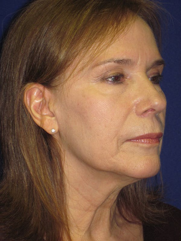 Facelift/Mini-Facelift Gallery - Patient 4890484 - Image 3