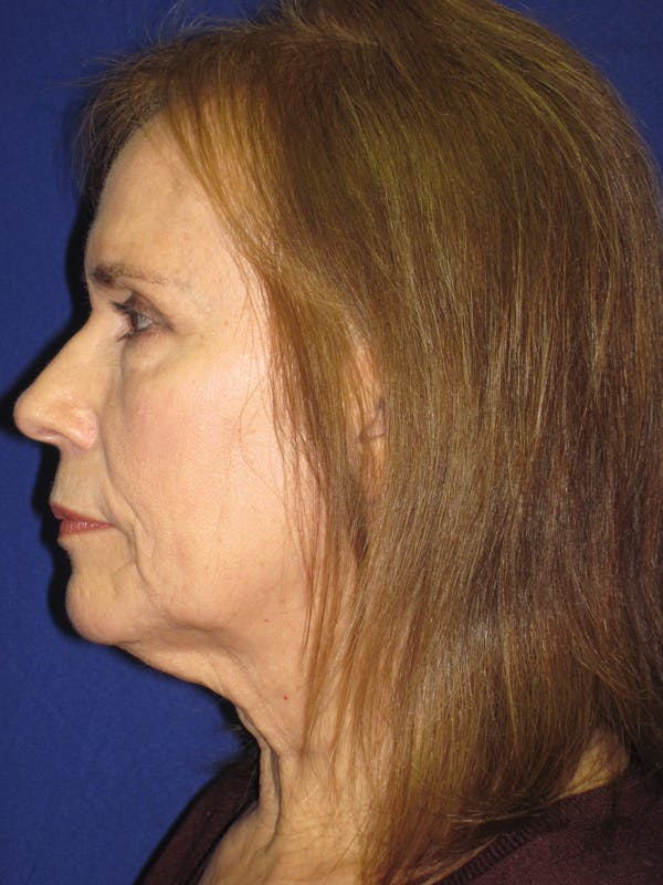 Facelift/Mini-Facelift Gallery - Patient 4890484 - Image 5