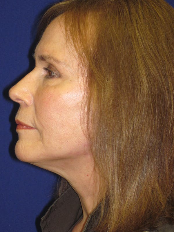 Facelift/Mini-Facelift Gallery - Patient 4890484 - Image 6