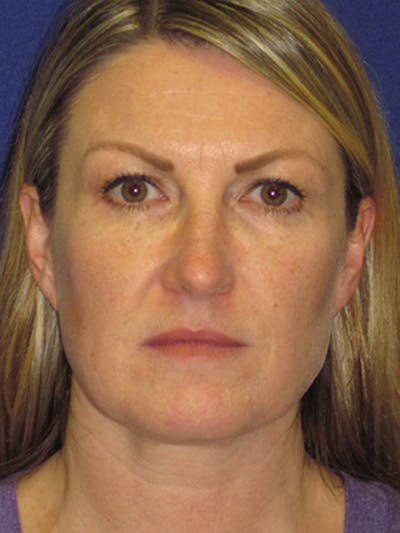 Facelift/Mini-Facelift Gallery - Patient 4890486 - Image 1