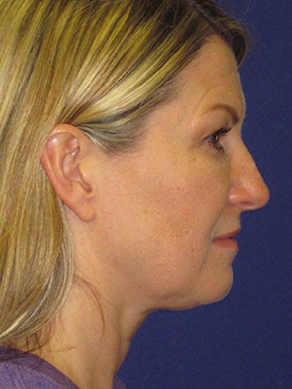 Facelift/Mini-Facelift Gallery - Patient 4890486 - Image 3
