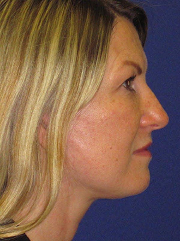 Facelift/Mini-Facelift Gallery - Patient 4890486 - Image 4