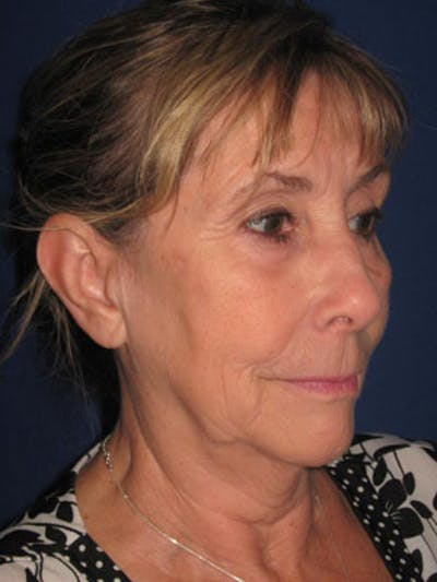 Facelift/Mini-Facelift Gallery - Patient 4890487 - Image 1