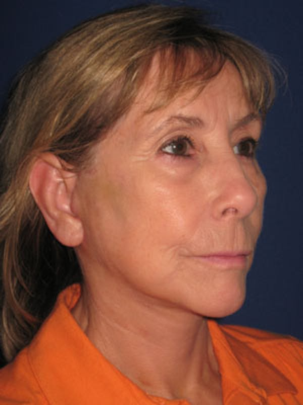 Facelift/Mini-Facelift Gallery - Patient 4890487 - Image 2