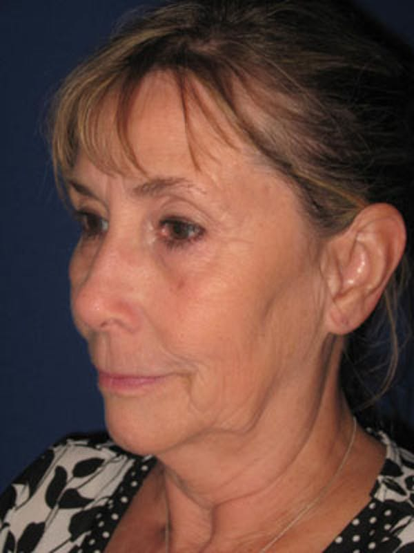 Facelift/Mini-Facelift Gallery - Patient 4890487 - Image 3