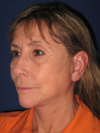 Facelift/Mini-Facelift Gallery - Patient 4890487 - Image 4