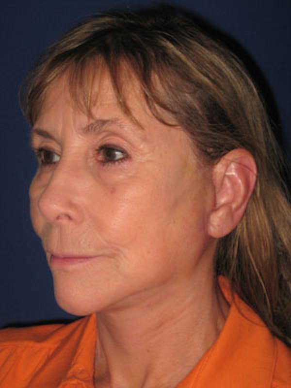 Facelift/Mini-Facelift Gallery - Patient 4890487 - Image 4