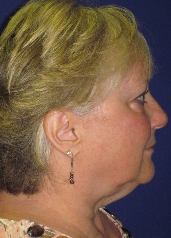Facelift/Mini-Facelift Gallery - Patient 4890498 - Image 5